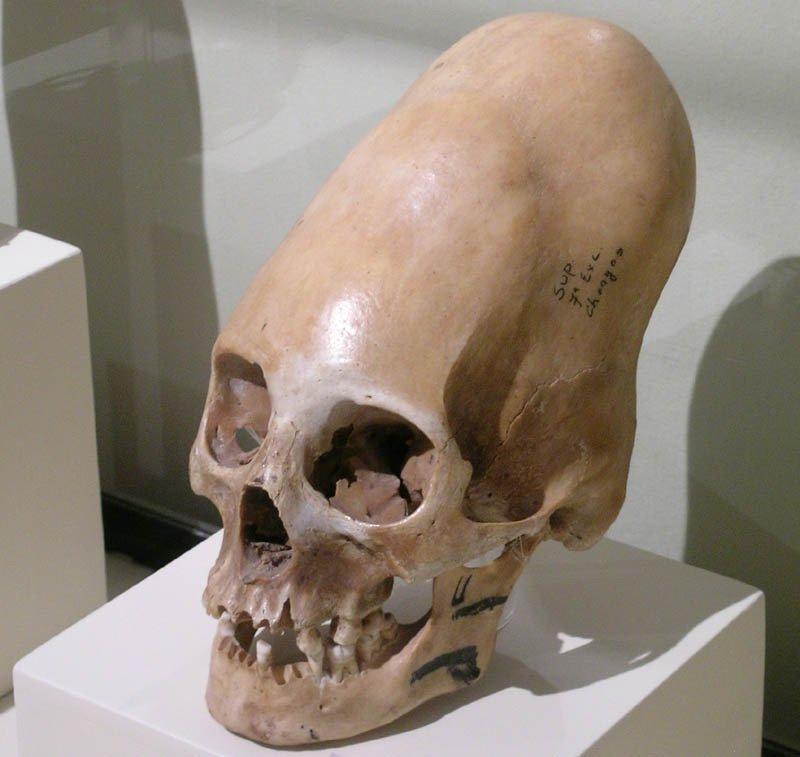Hechos sobre los cráneos deformados