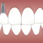 Qué tipos de implantes existen y cómo diferenciarlos